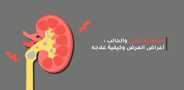 مذيب حصوات الكلى وأهم أسماء أدوية تفتيت الحصوات